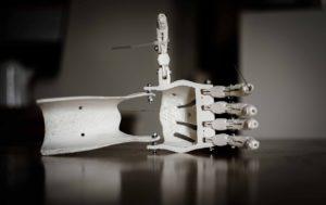 3D-Druck Protese